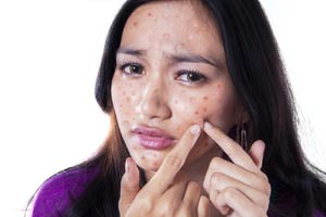Acne and Solvaderm