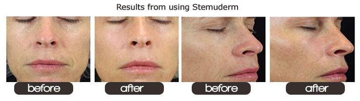 Solvaderm S Stemuderm Review Where To Buy Stemuderm Health