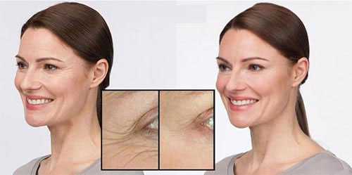 Stemuderm Eye anti wrinkle
